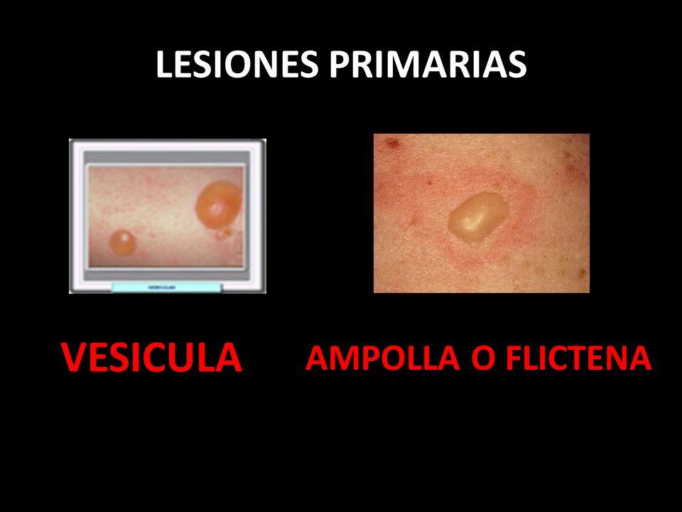 LESIONES PRIMARIAS VESICULA AMPOLLA O FLICTENA