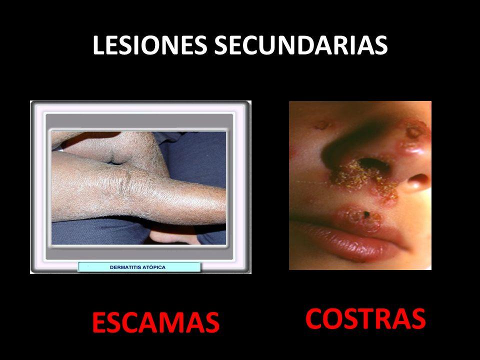 LESIONES SECUNDARIAS ESCAMAS COSTRAS