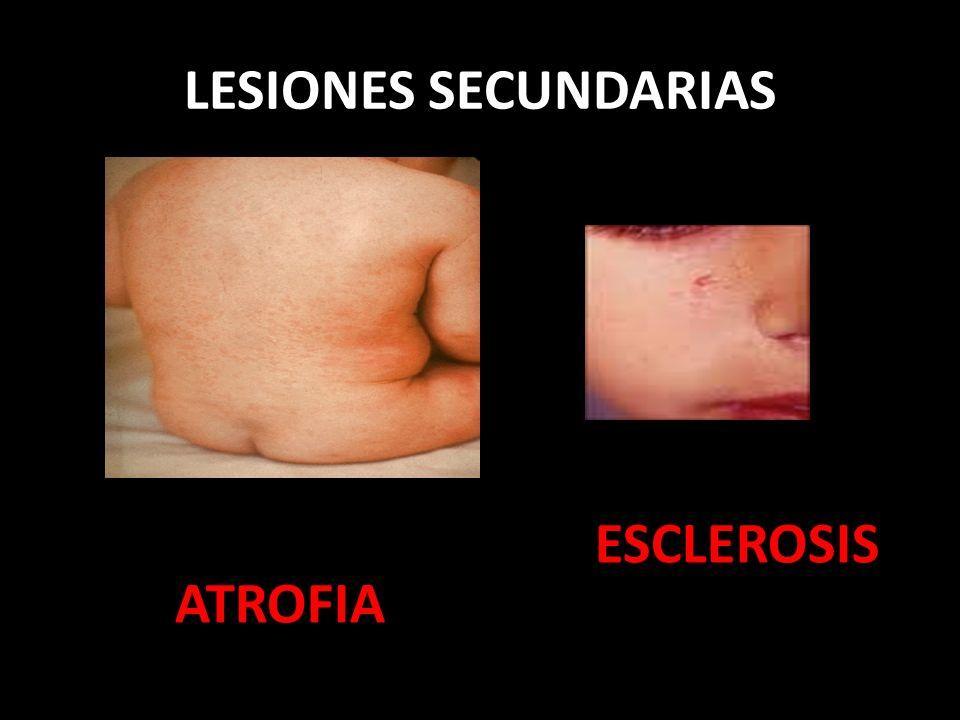 LESIONES SECUNDARIAS ATROFIA ESCLEROSIS