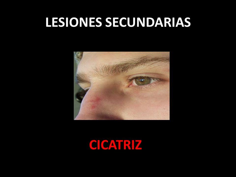 LESIONES SECUNDARIAS CICATRIZ