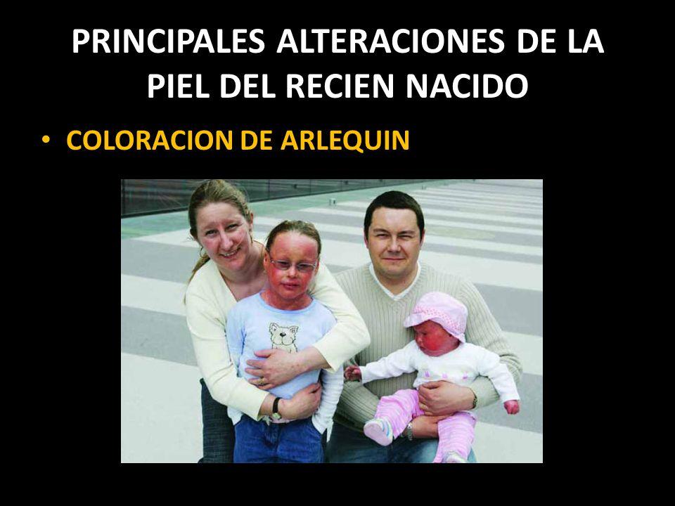 PRINCIPALES ALTERACIONES DE LA PIEL DEL RECIEN NACIDO COLORACION DE ARLEQUIN