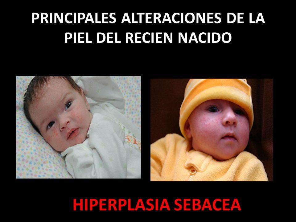 PRINCIPALES ALTERACIONES DE LA PIEL DEL RECIEN NACIDO HIPERPLASIA SEBACEA