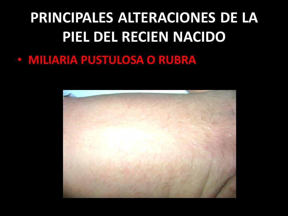 PRINCIPALES ALTERACIONES DE LA PIEL DEL RECIEN NACIDO MILIARIA PUSTULOSA O RUBRA