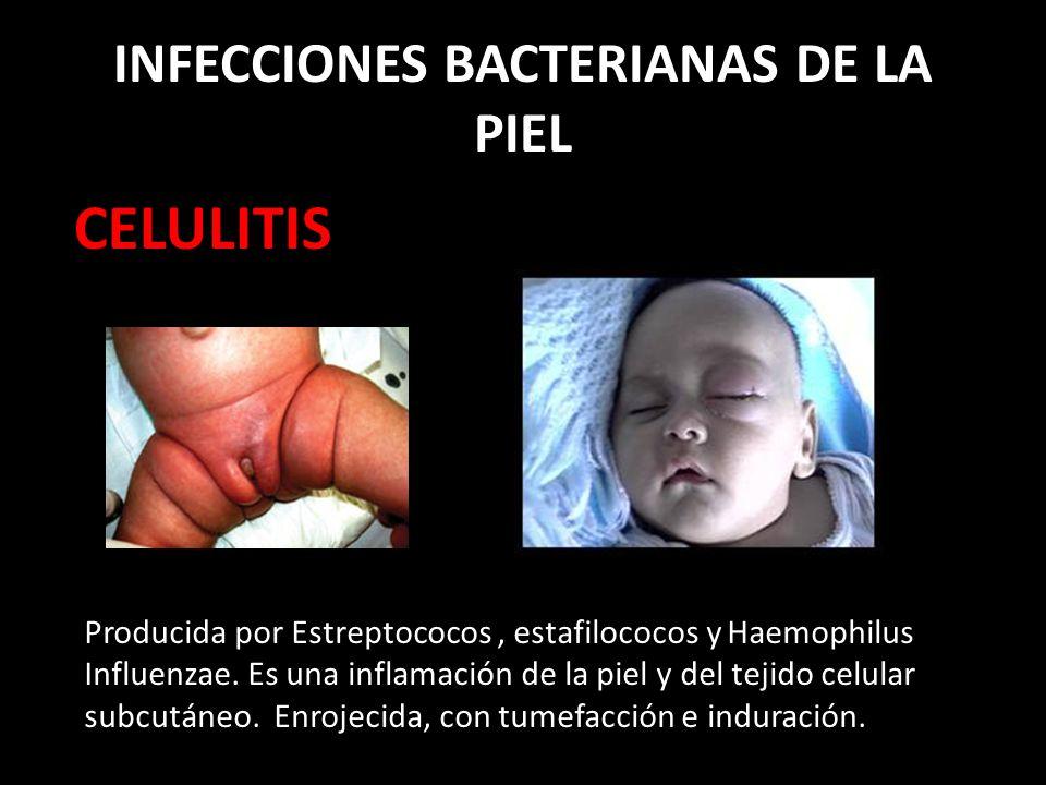 INFECCIONES BACTERIANAS DE LA PIEL CELULITIS Producida por Estreptococos, estafilococos y Haemophilus Influenzae.
