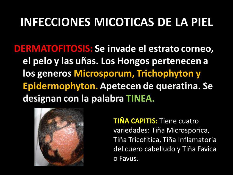 INFECCIONES MICOTICAS DE LA PIEL DERMATOFITOSIS: Se invade el estrato corneo, el pelo y las uñas.