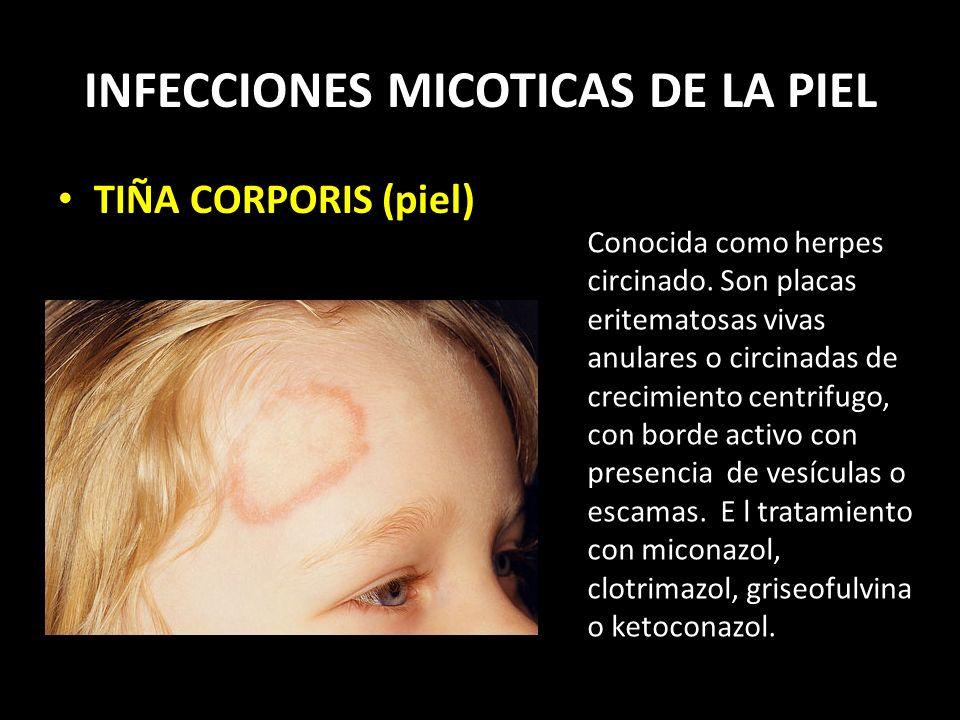 INFECCIONES MICOTICAS DE LA PIEL TIÑA CORPORIS (piel) Conocida como herpes circinado.