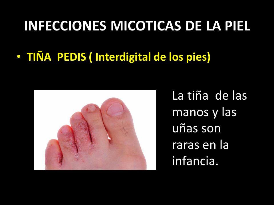INFECCIONES MICOTICAS DE LA PIEL TIÑA PEDIS ( Interdigital de los pies) La tiña de las manos y las uñas son raras en la infancia.