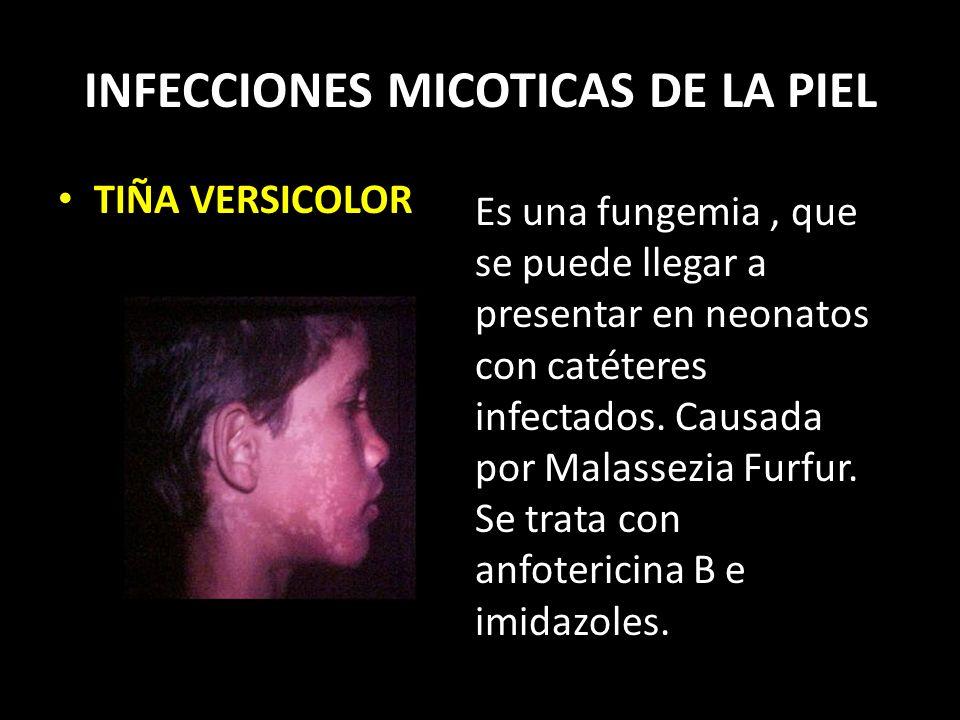 INFECCIONES MICOTICAS DE LA PIEL TIÑA VERSICOLOR Es una fungemia, que se puede llegar a presentar en neonatos con catéteres infectados.