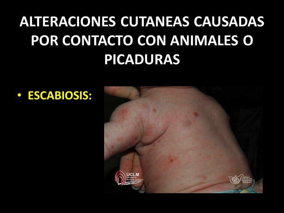 ALTERACIONES CUTANEAS CAUSADAS POR CONTACTO CON ANIMALES O PICADURAS ESCABIOSIS: