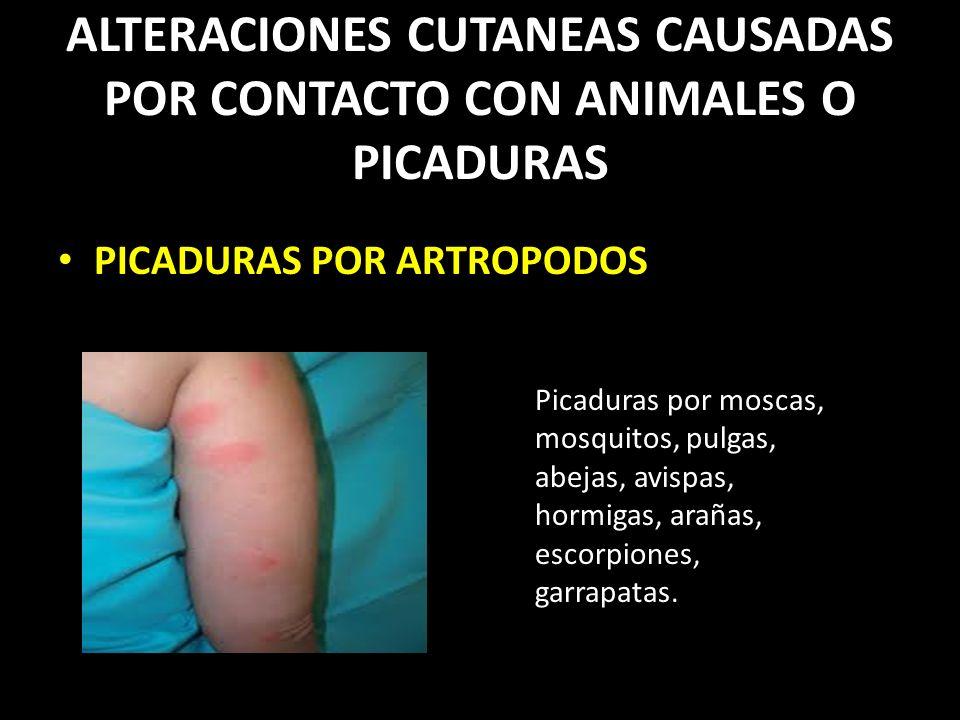 ALTERACIONES CUTANEAS CAUSADAS POR CONTACTO CON ANIMALES O PICADURAS PICADURAS POR ARTROPODOS Picaduras por moscas, mosquitos, pulgas, abejas, avispas, hormigas, arañas, escorpiones, garrapatas.