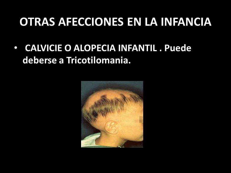 OTRAS AFECCIONES EN LA INFANCIA CALVICIE O ALOPECIA INFANTIL. Puede deberse a Tricotilomania.
