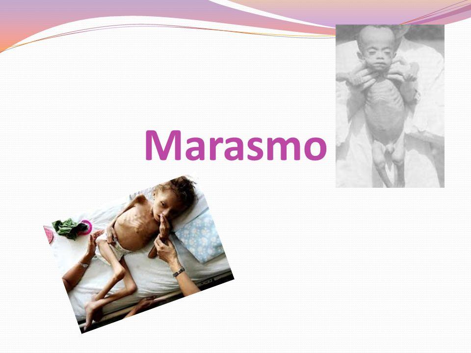 Marasmo