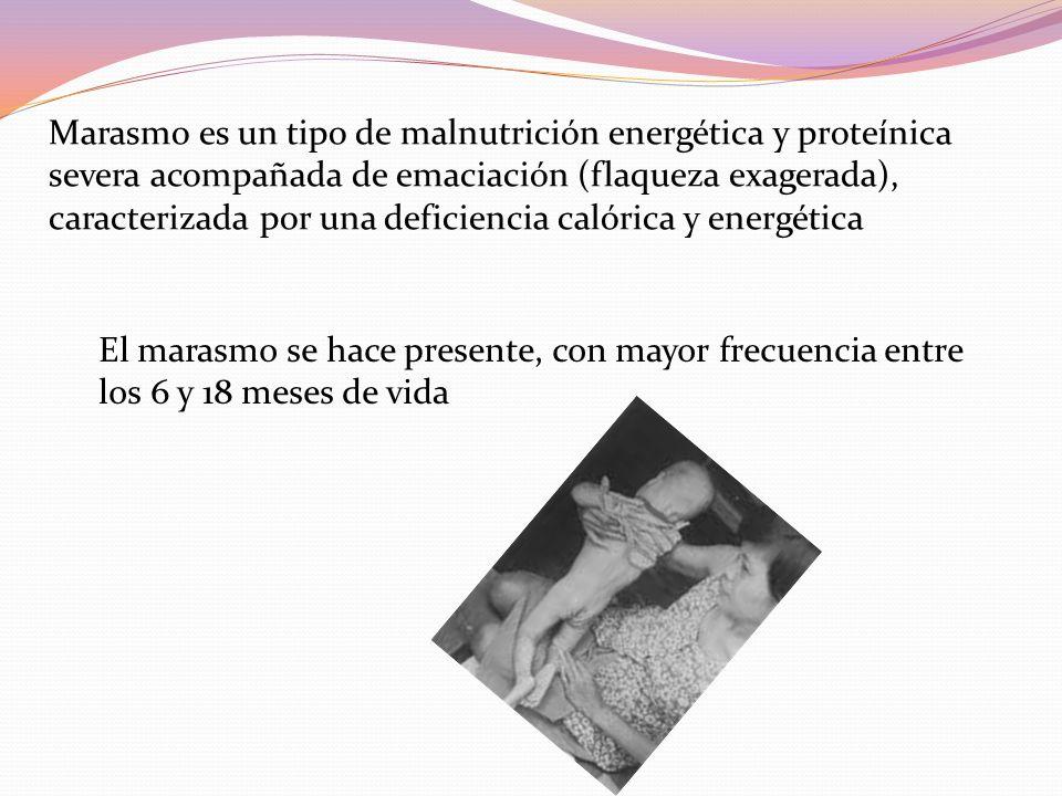 Marasmo es un tipo de malnutrición energética y proteínica severa acompañada de emaciación (flaqueza exagerada), caracterizada por una deficiencia calórica y energética El marasmo se hace presente, con mayor frecuencia entre los 6 y 18 meses de vida