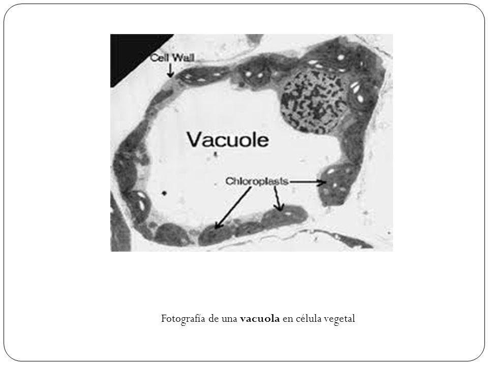 Fotografía de una vacuola en célula vegetal