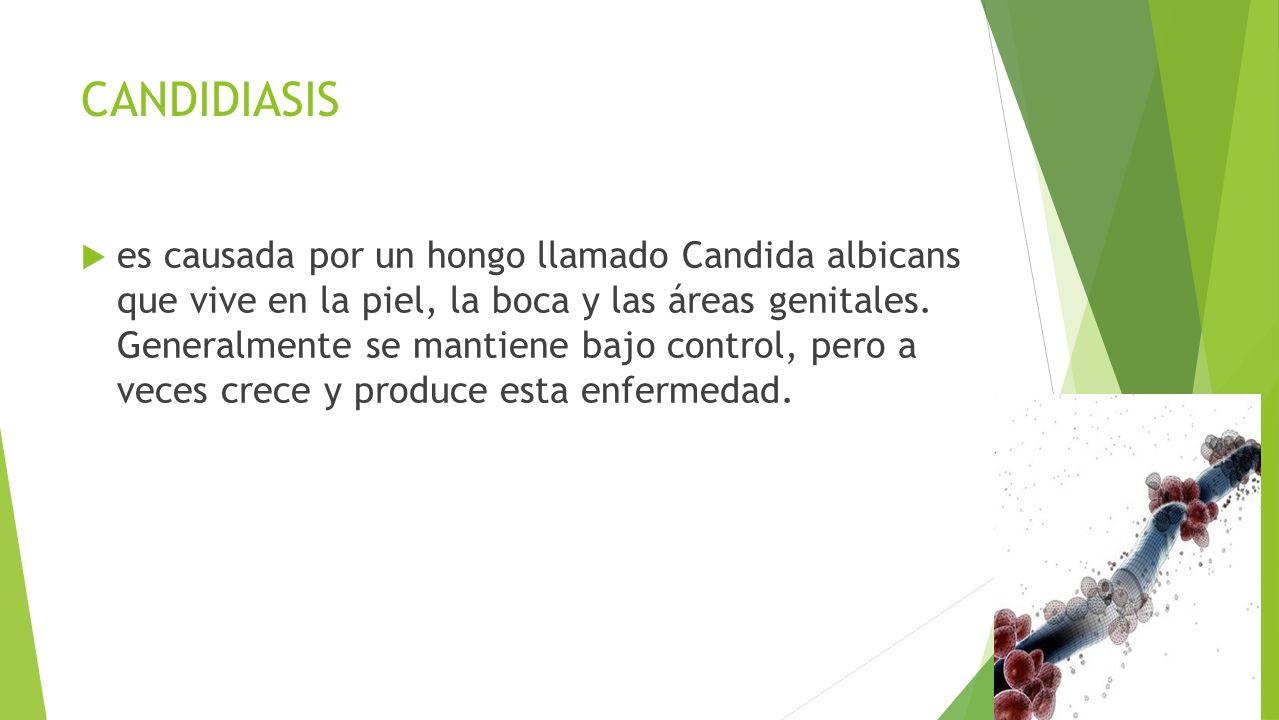 CANDIDIASIS  es causada por un hongo llamado Candida albicans que vive en la piel, la boca y las áreas genitales.