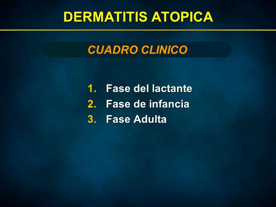 DERMATITIS ATOPICA 1.Fase del lactante 2.Fase de infancia 3.Fase Adulta 1.Fase del lactante 2.Fase de infancia 3.Fase Adulta CUADRO CLINICO