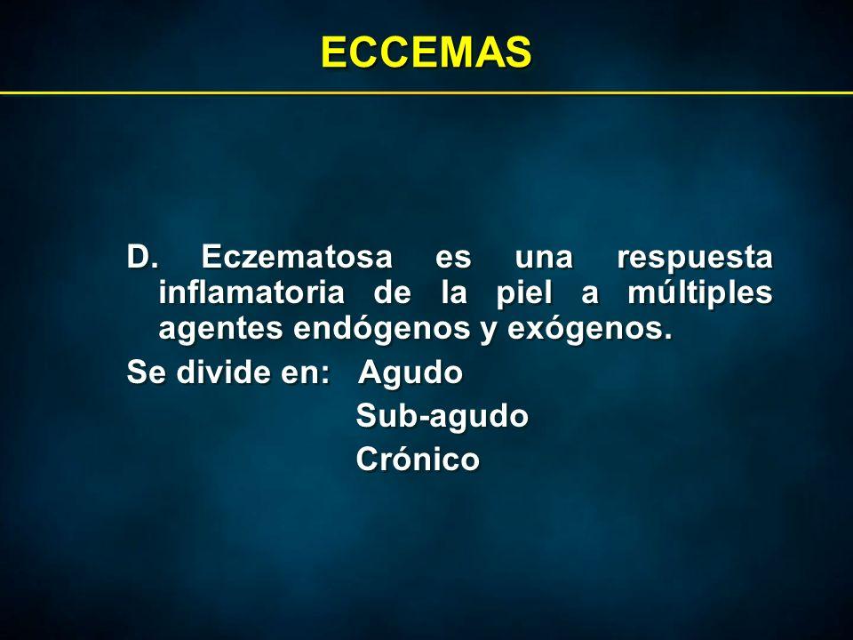 ECCEMASECCEMAS D.