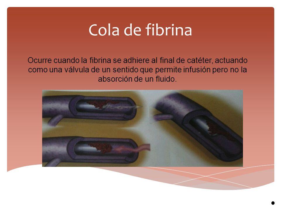 Cola de fibrina Ocurre cuando la fibrina se adhiere al final de catéter, actuando como una válvula de un sentido que permite infusión pero no la absor