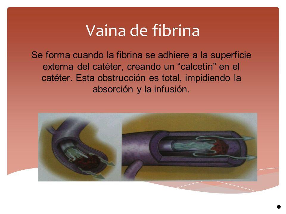 """Vaina de fibrina Se forma cuando la fibrina se adhiere a la superficie externa del catéter, creando un """"calcetín"""" en el catéter. Esta obstrucción es t"""
