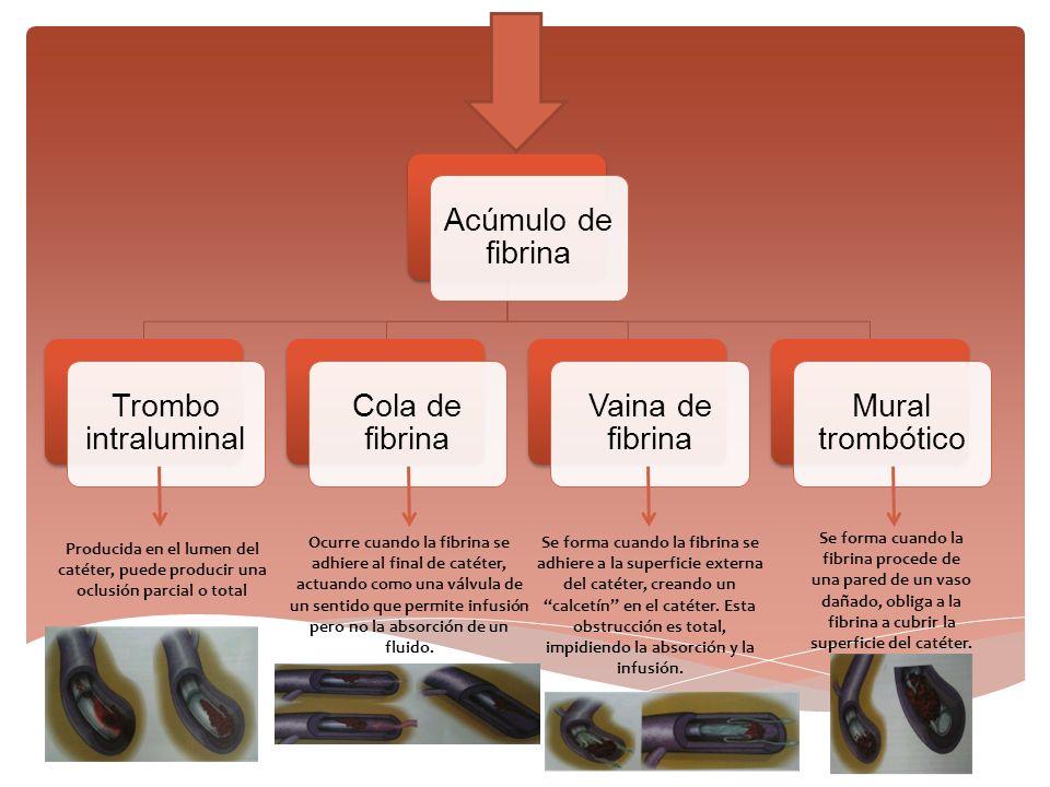 Acúmulo de fibrina Trombo intraluminal Cola de fibrina Vaina de fibrina Mural trombótico Producida en el lumen del catéter, puede producir una oclusió