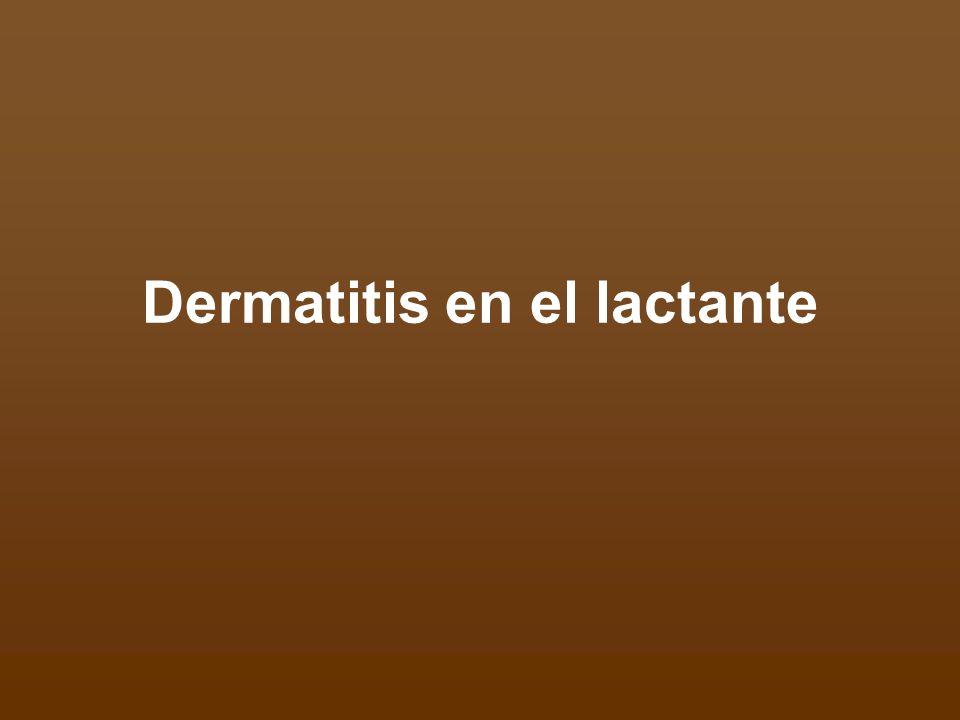 Reacción inflamatoria de la piel del lactante Tipos más frecuentes: - Dermatitis atópica - Dermatitis seborreica - Dermatitis del área del pañal No son contagiosas