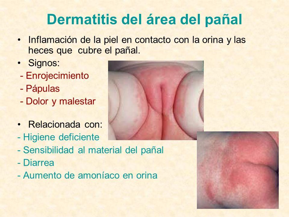Dermatitis del área del pañal Inflamación de la piel en contacto con la orina y las heces que cubre el pañal.