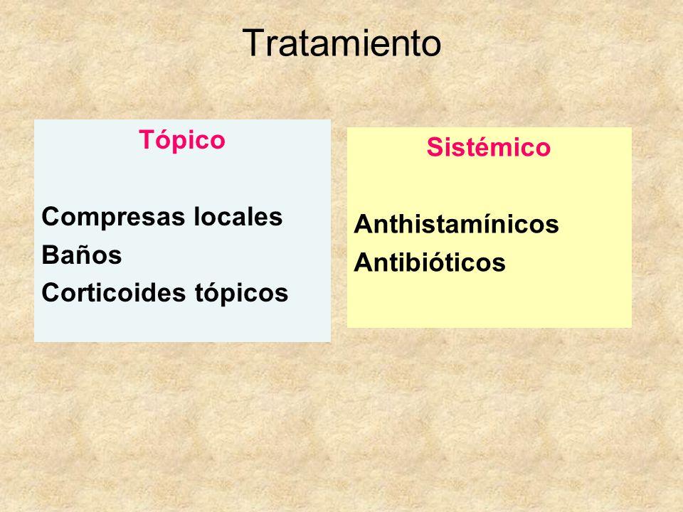 Tratamiento Tópico Compresas locales Baños Corticoides tópicos Sistémico Anthistamínicos Antibióticos