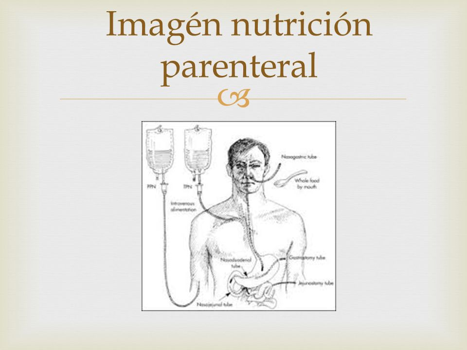  Imagén nutrición parenteral