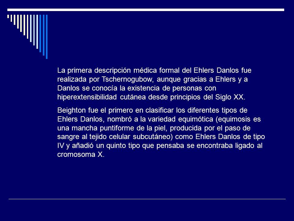 Síndrome de Ehlers Danlos Ps Jaime E Vargas M A515TE. - ppt descargar