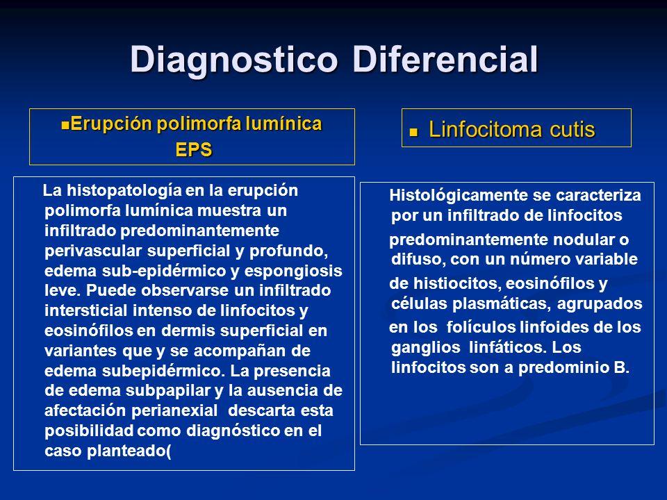 Diagnostico Diferencial Histológicamente presenta un infiltrado linfocitario con linfocitos de aspecto uniforme, ausencia de folículos germinales, ausencia de zona del manto y ausencia de macrófagos, el infiltrado es difuso y destruye los anexos.