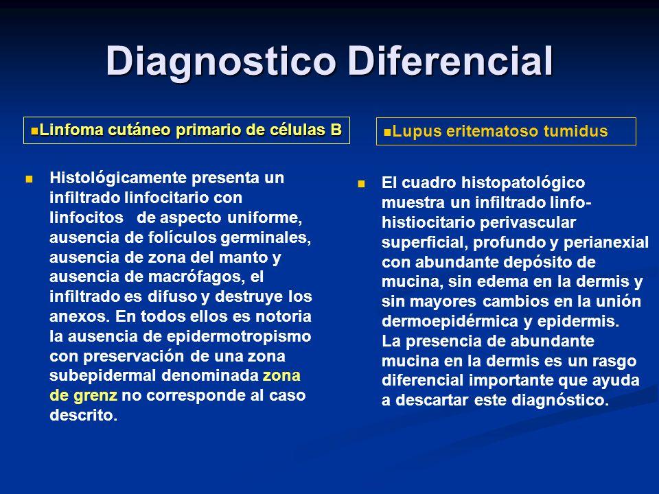 Las características microscópicas son las habituales a las del lupus eritematoso discoide, salvo por la ausencia de lesiones tanto activas como residuales en la zona de la unión dermoepidérmica y en la basal folicular.