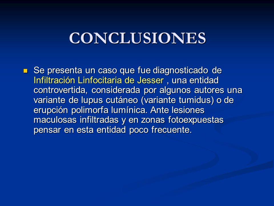 CONCLUSIONES Se presenta un caso que fue diagnosticado de Infiltración Linfocitaria de Jesser, una entidad controvertida, considerada por algunos auto