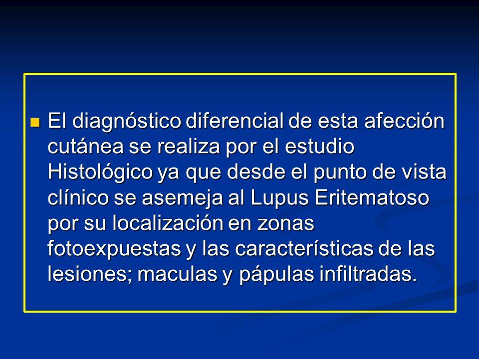 El diagnóstico diferencial de esta afección cutánea se realiza por el estudio Histológico ya que desde el punto de vista clínico se asemeja al Lupus E