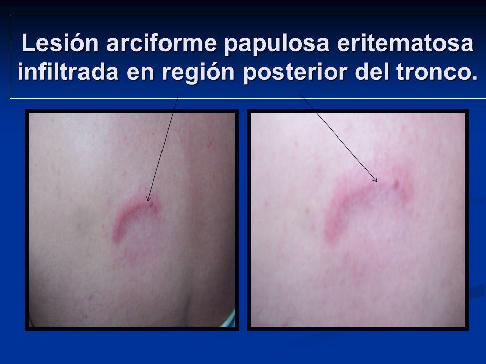 Lesión placa infiltrada en región anterior del tórax.