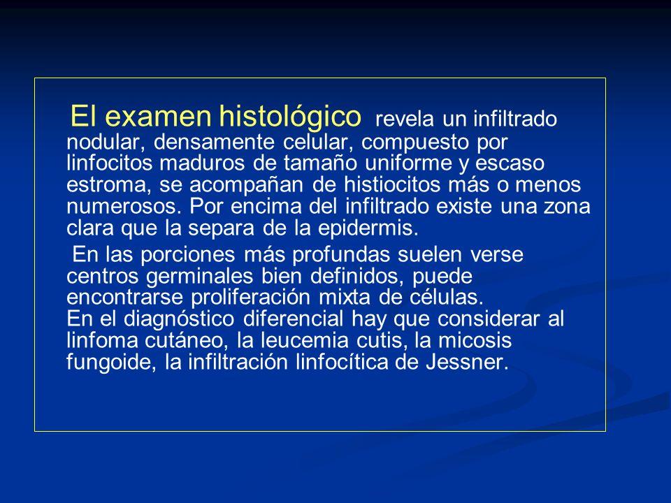 El examen histológico revela un infiltrado nodular, densamente celular, compuesto por linfocitos maduros de tamaño uniforme y escaso estroma, se acomp