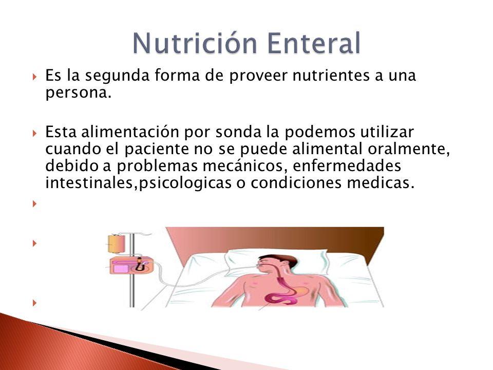  Es la segunda forma de proveer nutrientes a una persona.