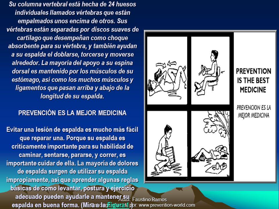 Autor: Faustino Ramos Descarga ofrecida por: www.prevention-world.com Su columna vertebral está hecha de 24 huesos individuales llamados vértebras que están empalmados unos encima de otros.