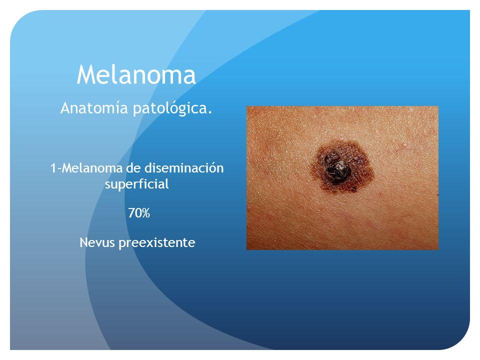 Melanoma Anatomía patológica. 1-Melanoma de diseminación superficial 70% Nevus preexistente