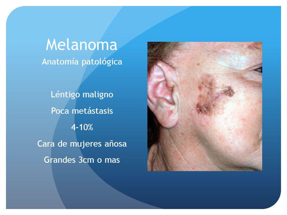 Melanoma Anatomía patológica Léntigo maligno Poca metástasis 4-10% Cara de mujeres añosa Grandes 3cm o mas