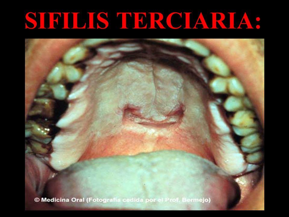 SIFILIS TERCIARIA:
