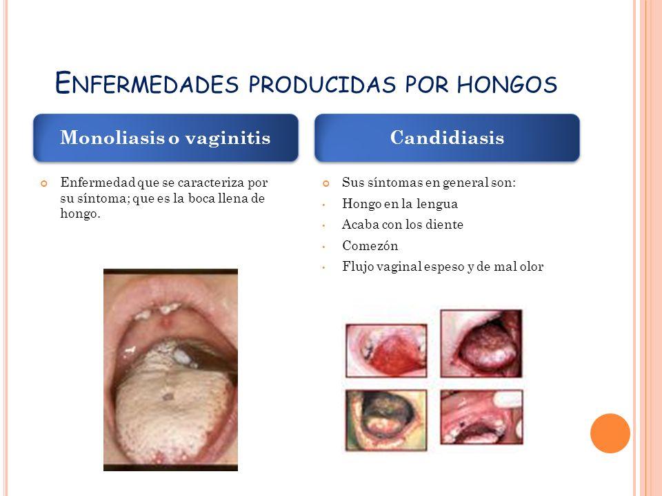 E NFERMEDADES PRODUCIDAS POR HONGOS Enfermedad que se caracteriza por su síntoma; que es la boca llena de hongo.