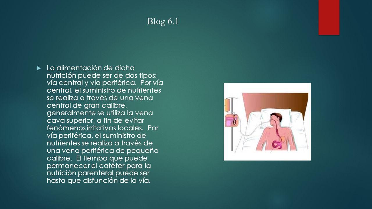Blog 6.1  La alimentación de dicha nutrición puede ser de dos tipos: vía central y vía periférica.