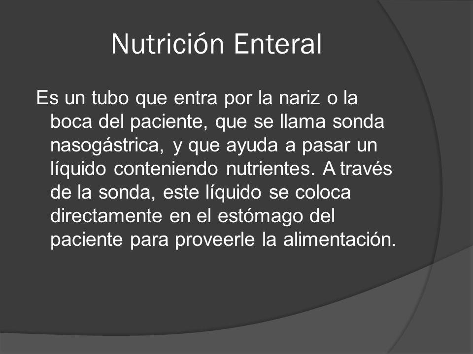 Nutrición Enteral Suplementos Nutricionales 1- Ensure-alta en proteínas.