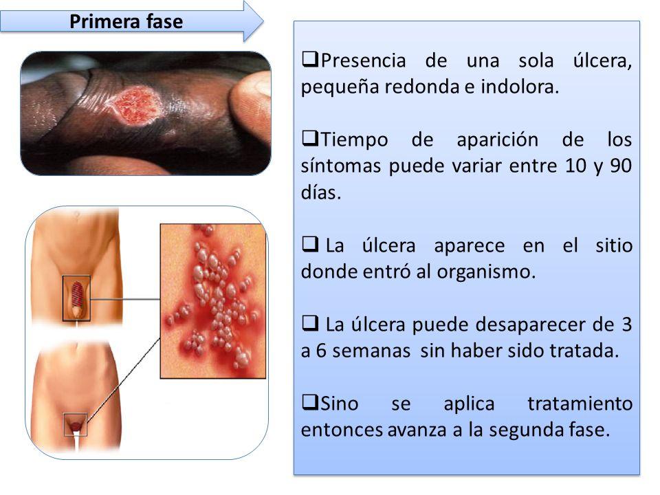 Primera fase  Presencia de una sola úlcera, pequeña redonda e indolora.