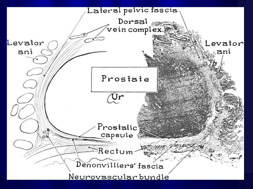 Excepcional Haz Neurovascular La Anatomía De La Próstata Bosquejo ...