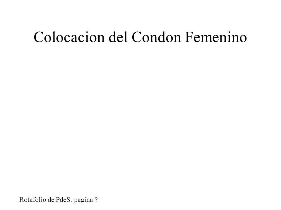 Colocacion del Condon Femenino Rotafolio de PdeS: pagina ?