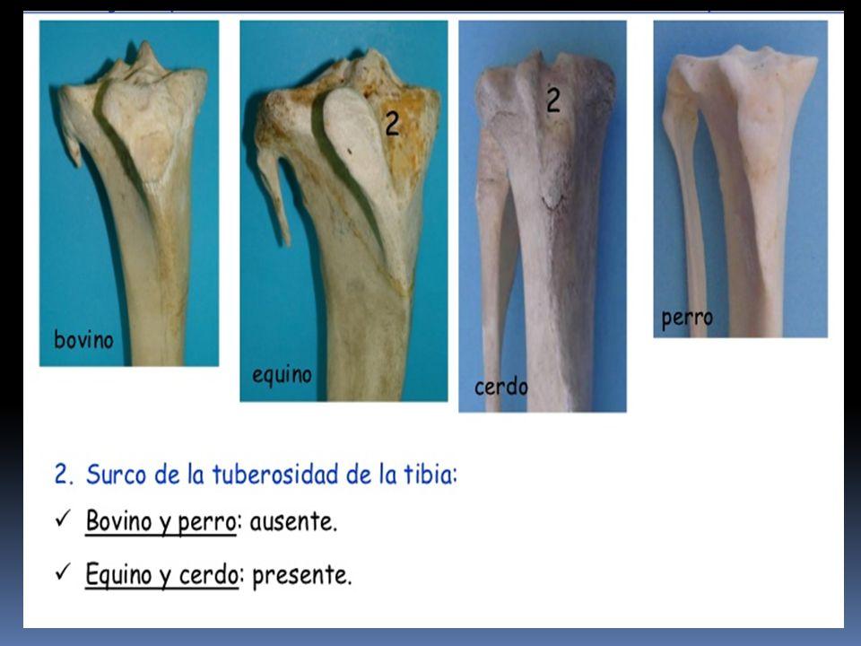 Fantástico La Tibia Y El Peroné Anatomía Fotos - Anatomía de Las ...