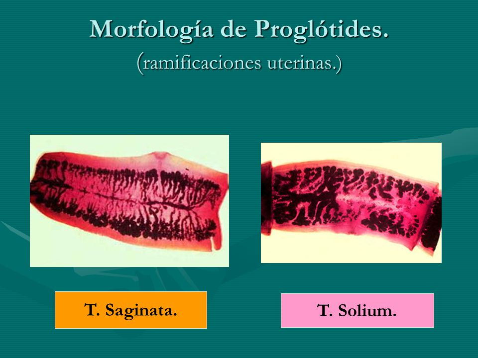 Morfología de Proglótides. ( ramificaciones uterinas.) T. Saginata. T. Solium.