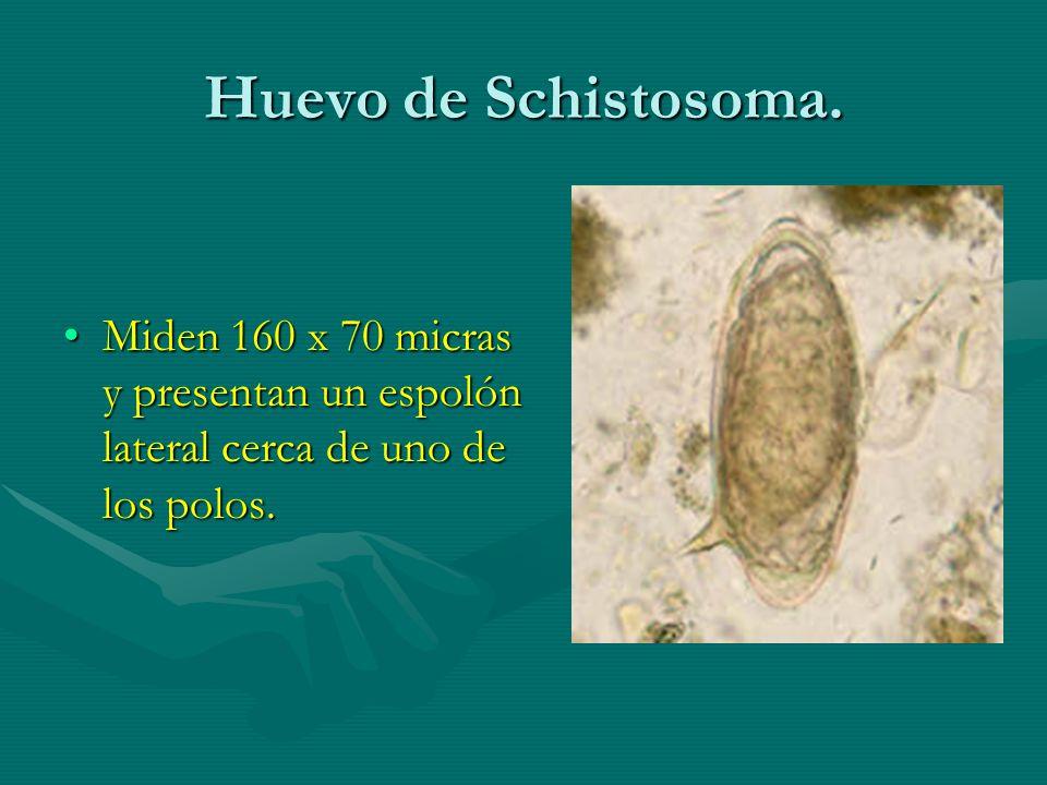Huevo de Schistosoma. Miden 160 x 70 micras y presentan un espolón lateral cerca de uno de los polos.Miden 160 x 70 micras y presentan un espolón late