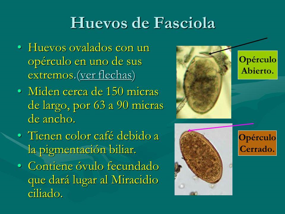 Huevos de Fasciola Huevos ovalados con un opérculo en uno de sus extremos.(ver flechas)Huevos ovalados con un opérculo en uno de sus extremos.(ver flechas) Miden cerca de 150 micras de largo, por 63 a 90 micras de ancho.Miden cerca de 150 micras de largo, por 63 a 90 micras de ancho.